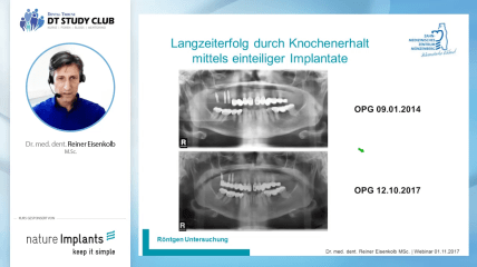 Nature Implants Webinar: Zementierte einteilige Implantatversorgungen