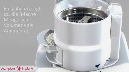Smart Dentin Grinder: Einfach Herstellung autologen Knochenersatzmaterials