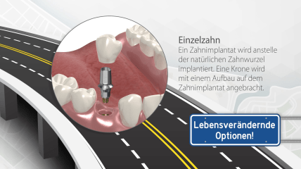 Smile Guide von Implant Direct