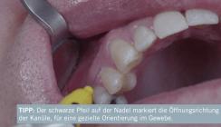 Tipps & Tricks zur Intraligamentären Anästhesie (ILA)