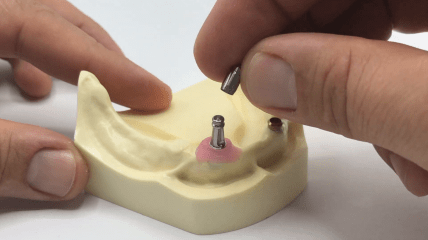 TRI® 2in1 Impression Abutment Tutorial