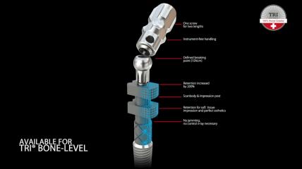 TRI® 3D-Touch Abdruckpfosten: So funktioniert's