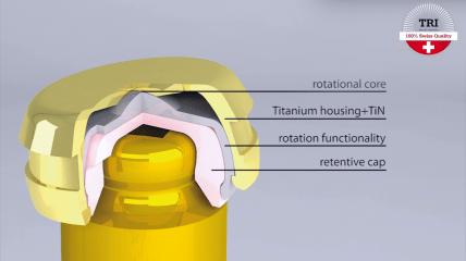 TRI® Raptor: Innovatives Befestigungssystem für Deckprothesen