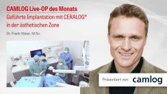 Video der CAMLOG Live-OP zur geführten Implantologie mit CERALOG®